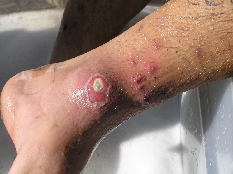 staph infection on ankle northeast school of botanical medicine